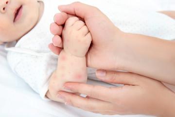 赤ちゃん 発疹